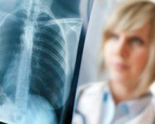 Bronhopneumopatia obstructiva cronica, mituri si adevaruri