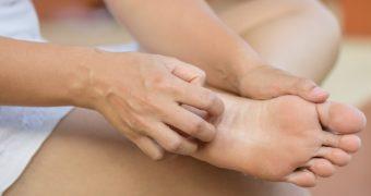 Micozele mainilor si picioarelor: cele mai frecvente forme