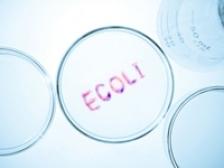 Bacteria E. Coli, responsabila de aparitia cancerului de colon?