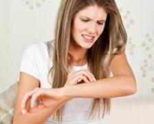 Cauza genetica a aparitiei eczemelor