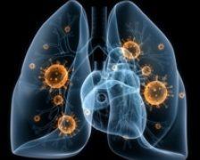 Un nou test poate depista cancerul la plamani