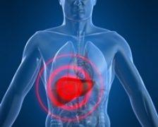 Software nou pentru inlaturarea tumorilor hepatice