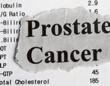 Depistarea precoce a cancerului de prostata 4
