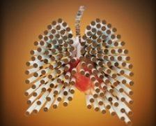 Diagnosticarea si tratamentul cancerului pulmonar