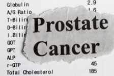 Testul care ar putea identifica tumorile agresive in cazul cancerului de prostata
