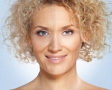 O solutie pe baza de inalbitor diluat ar putea reduce imbatranirea pielii