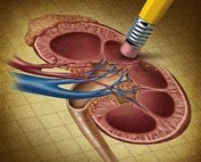 Netratati, calculii renali pot duce la ureterohidronefroza