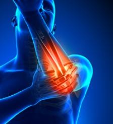 Analiza genetica artrita reumatoida