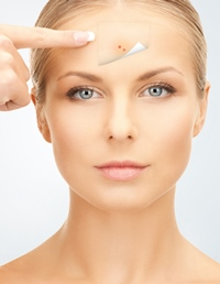 retete naturiste - la acnee