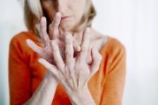Artrita psoriazica: simptome si factori de risc