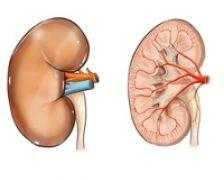 Pietrele la rinichi: ce sunt si cum pot fi combatute?