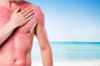 Modalitati de prevenire a cancerului de piele