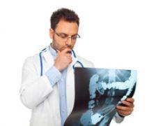 Cancerul intestinului gros, o consecinta a nivelului ridicat de trai