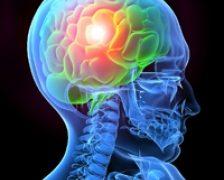 Stimularea cerebrala ajuta in recuperarea dupa un accident vascular cerebral