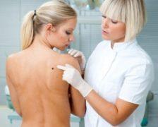 Celulele scuamoase – o forma frecventa de cancer