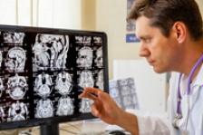 Atacul vascular cerebral: cum il recunoastem?