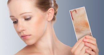 Dermatita de contact: din ce cauza apare?