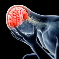 Atacul vascular cerebral