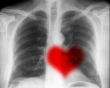 Boala pulmonara interstitiala: care sunt cauzele si tratamentul?