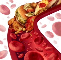 afectiuni-cardio-vasculare-2