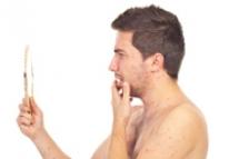 Cele mai simple tratamente naturiste pentru acnee