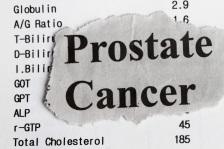 Cancerul de prostata: care sunt simptomele si cum este diagnosticat?