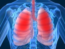 decupat tuberculoza