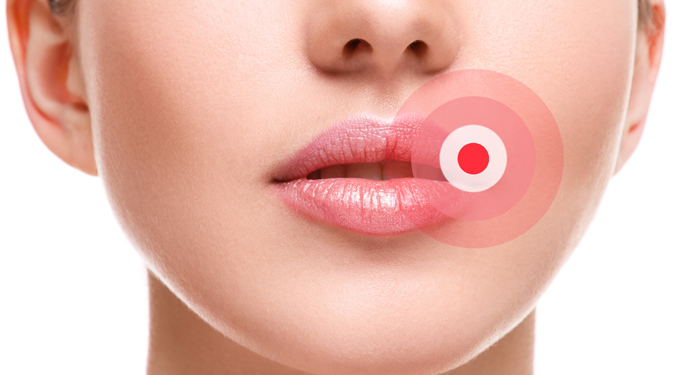 Cancerul oral: cauze, factori de risc, tratament