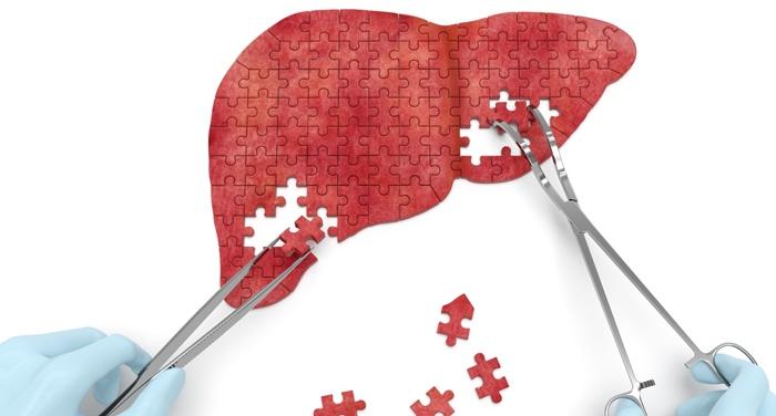 Ce-i de facut pentru a va proteja ficatul, daca aveti hepatita C