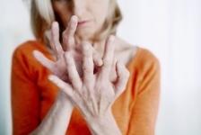 ce tratează artroza articulației umărului