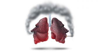 Bronsita cronica. De ce sa renuntati la fumat