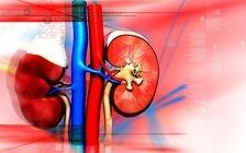 Durerea de rinichi: cum se manifesta si ce ascunde?