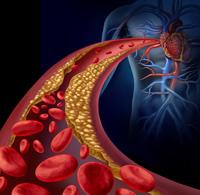 alimente colesterol1