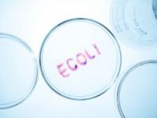 Ce trebuie sa stiti despre bacteria E. coli