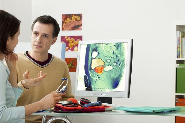 prostata secundara