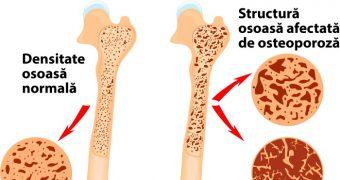 8 moduri prin care puteti tine sub control osteoporoza