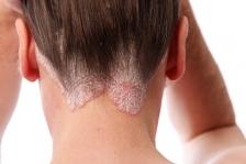 Psoriazisul scalpului: simptome si metode de ameliorare