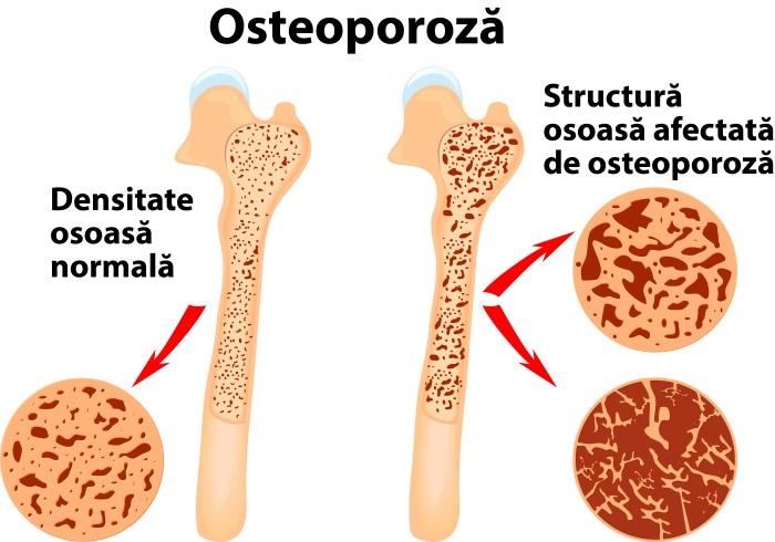 tratament pentru osteoporoza avansata