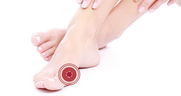 Piciorul diabetic: sfaturi de ingrijire in timpul sezonului rece