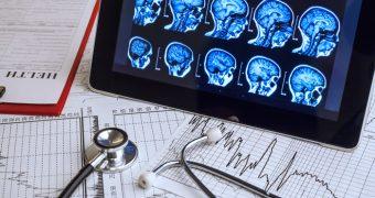 Factori de risc surprinzatori pentru scleroza multipla