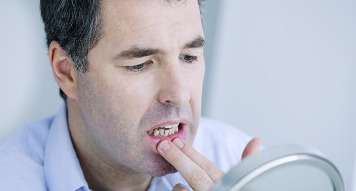 Dureroase si recurente: cum tratam aftele bucale?