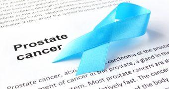 Cancerul de prostata avansat: optiuni de tratament