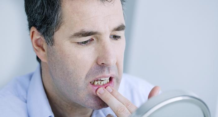 8 semne ale cancerului oral ce nu trebuie ignorate