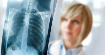 Ce legatura exista intre boala celiaca si pneumonie
