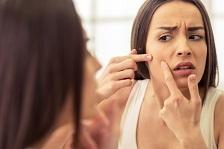 Acneea ar putea fi cauzata de un dezechilibru al bacteriilor pielii