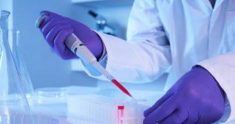 Test de sange care detecteaza cancerul in lipsa simptomelor