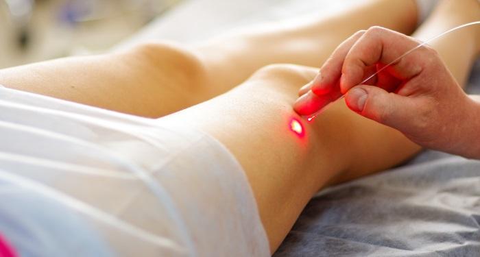 terapie-laser-picioare