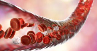 Trombocitoza: cauze si diagnostic