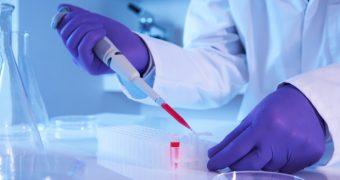 Anticorpii produsi de vaci, posibil tratament in lupta impotriva HIV