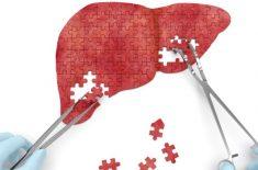 Ciroza hepatica: remedii pentru acasa